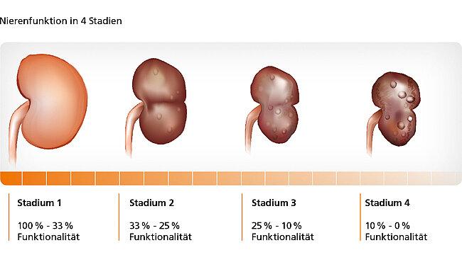Abbildung zur Nierenfunktion in 4 Stadien.